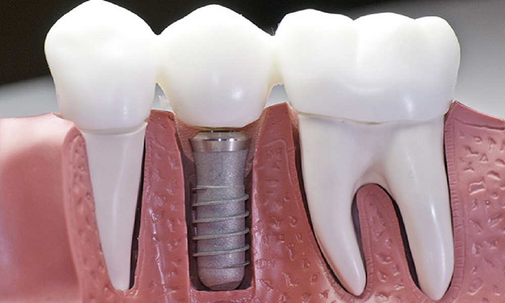 Implantologija / Dental implantology 4
