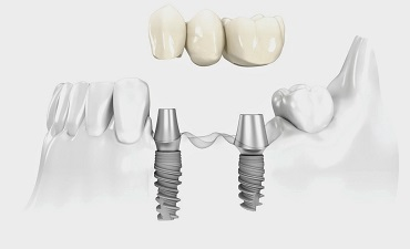 CROWNS AND BRIDGES ON DENTAL IMPLANTS