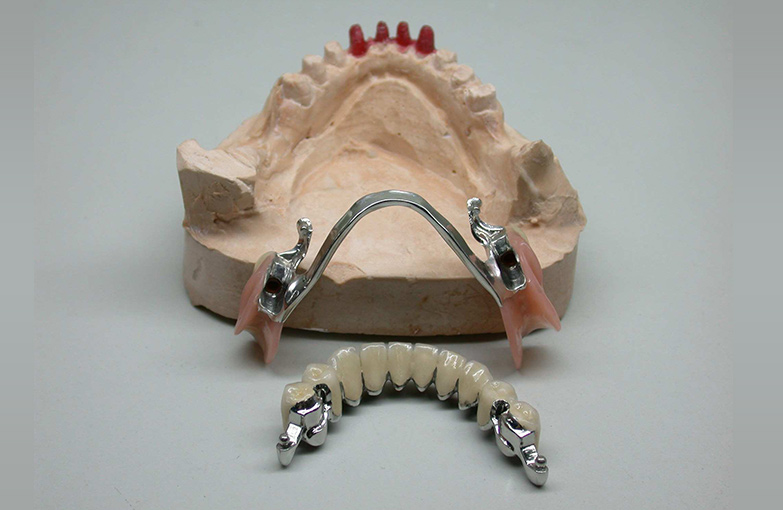 COMBINED FIXED-MOBILE PROSTHETIC RESTORATIONS